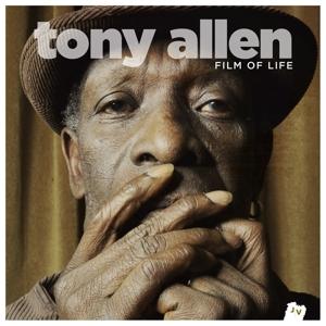 Allen,Tony